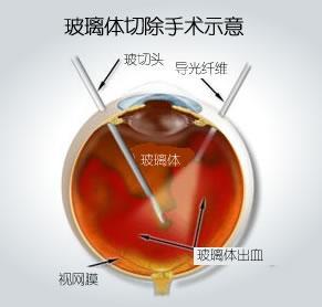 视网膜玻璃体手术费用